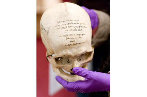 The Hyrtl collection at the Mutter Museum includes 139 skulls from Europe. Each skull's brief story is written in German right on the bone.                                             (Todd Vachon/WHYY)